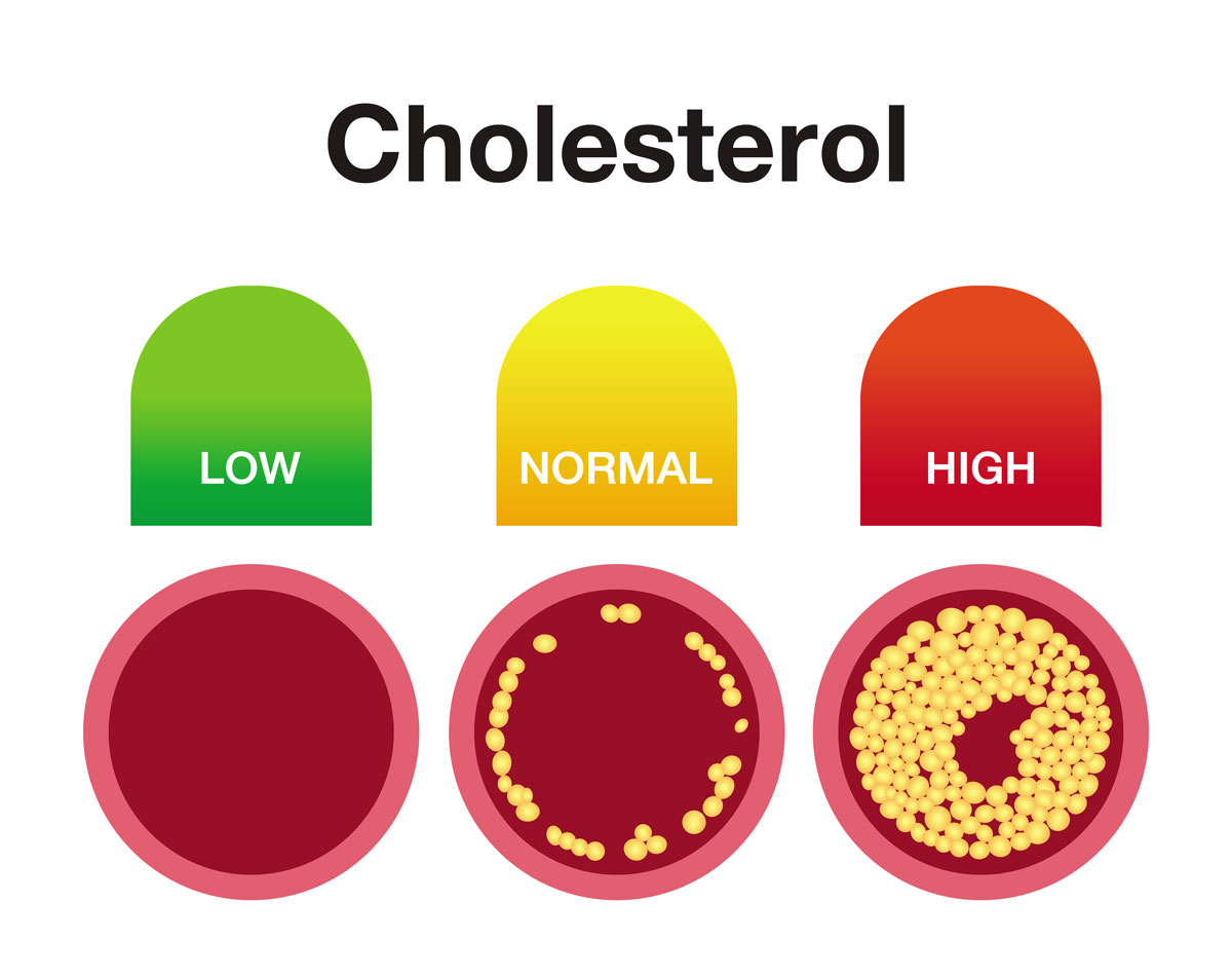 cholesterol levels and arteries clog